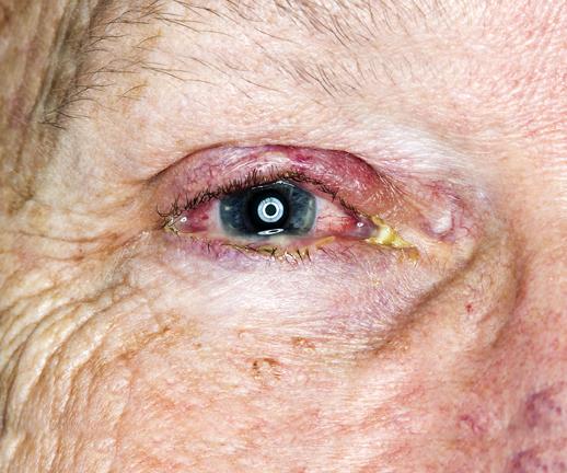 Masquerading malignancies: The Hidden Eye Diseases