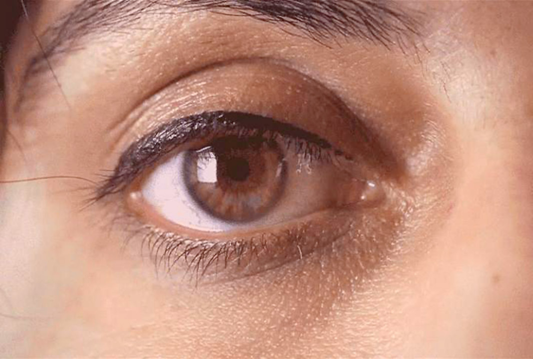 Blinking prompts eye muscles to keep our vision in line, according to new research
